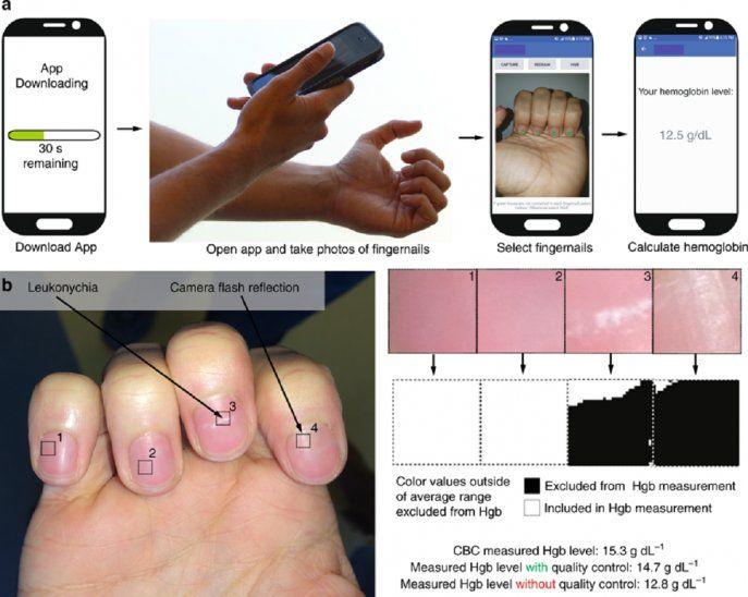 Gráfico explicativo sobre cómo utilizar la app para la detección de anemia.