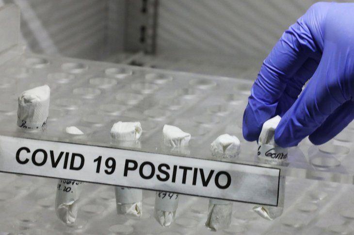 Una enfermera organiza muestras positivas de coronavirus de pacientes donantes de plasma.