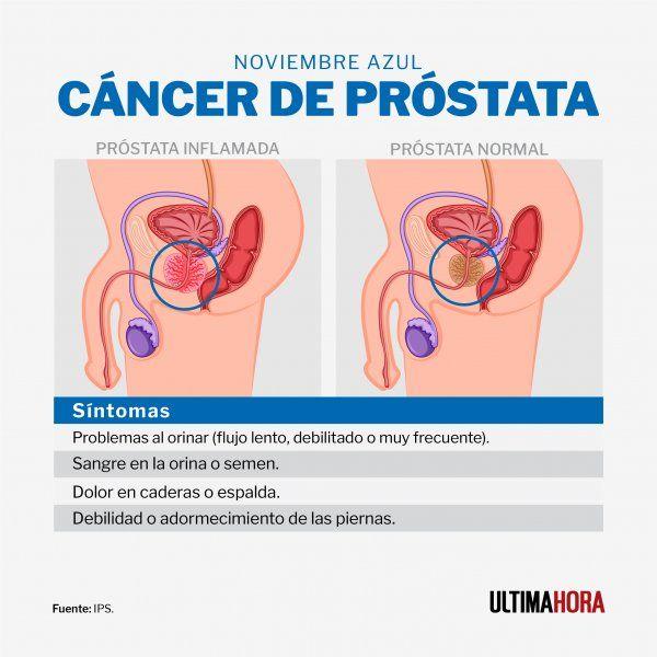 prostata inflamada grado 3 y