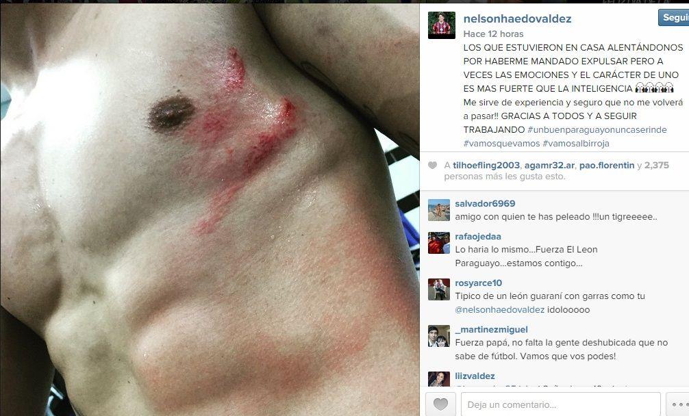 Haedo pidió disculpas por su reacción contra Maynor Figueroa. Foto: Instagram